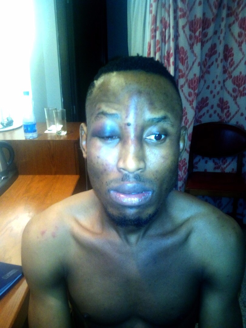 Mr 2kay wounded pics
